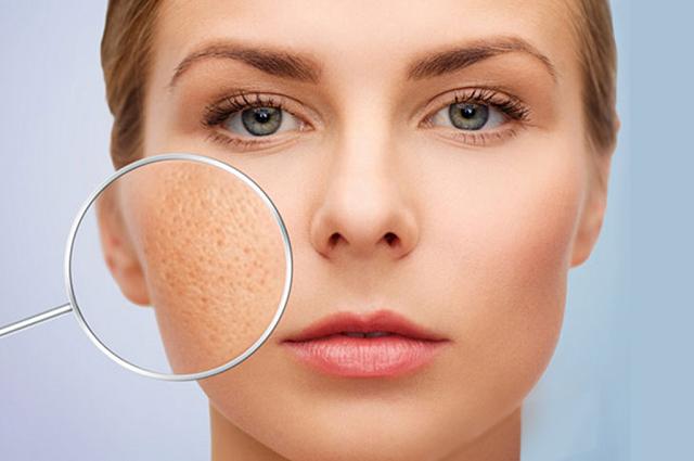 Nước ion axit pH 5.5 – 6.0 có tác dụng se khít lỗ chân lông và làm đẹp da hiệu quả