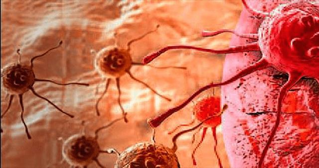 Ung thư hạch bạch huyết: Nguy cơ và Chẩn đoán