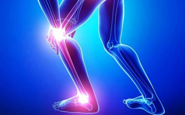 Bệnh đau khớp gối có thể gây ra nhiều biến chứng nguy hiểm