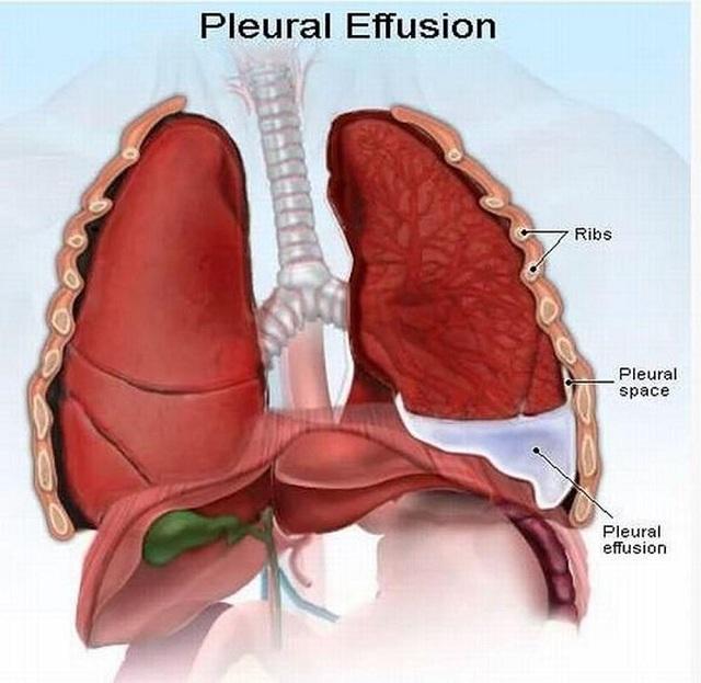 bệnh tràn dịch màn phổi nên ăn gì ?