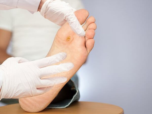 Biến chứng hoại tử bàn chân ở bệnh nhân tiểu đường 2