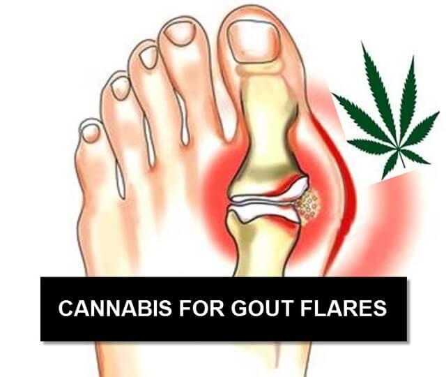 Các loại thuốc điều trị Gout mãn tính tốt nhất 2018