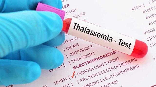 thalassemia nên ăn gì là tốt
