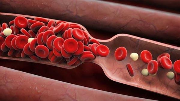 Lưu thông máu kém gây ra nhiều biến chứng rất nguy hiểm