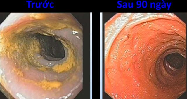 Hình ảnh tình trạng đường ruột trước khi sử dụng nước ion kiềm ở bên trái và kết quả sau 90 ngày là bên phải