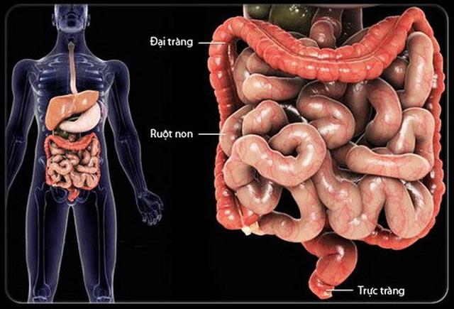 Viêm đại tràng là tình trạng tổn thương thường kéo dài ở niêm mạc đại tràng