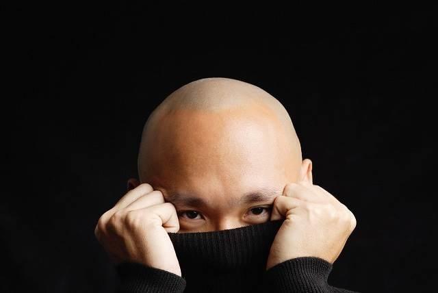 90% phụ nữ thích đàn ông có mái tóc dày – đó cũng là lý do khiến nam giới tự ti về hói đầu