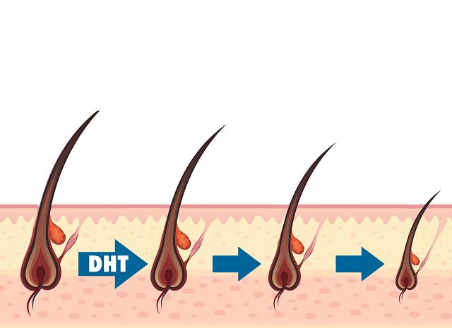 DHT khiến các tế bào nang tóc co lại gây ra tình trạng gãy rụng của tóc vì không được truyền đủ các dưỡng chất nuôi tóc