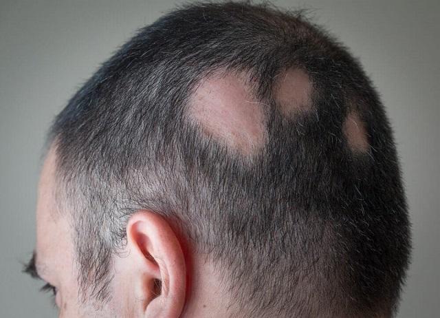 Tình trạng bệnh Alopecia areata (rụng tóc từng mảng/vùng) ở nam giới