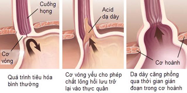 Vì sao dịch axit có thể trào ngược từ dạ dày lên thực quản?