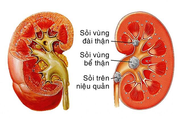 Cơ thể dư nhiều acid có thể dẫn đến sỏi thận