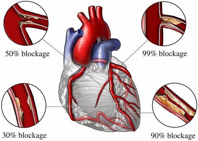 Các vị trí hình thành các mảng xơ vữa động mạch ở các mạch vành nuôi dưỡng cơ tim và mức độ làm hẹp thành mạch của chúng