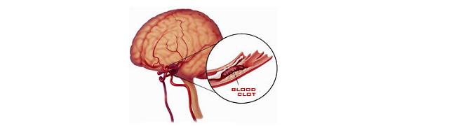 Xơ vữa động mạch não làm hẹp lòng mạch máu