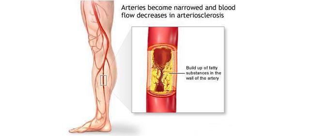 Mảng xơ vữa động mạch làm hẹp lòng động mạch chi dưới làm giảm lưu lượng máu lưu thông