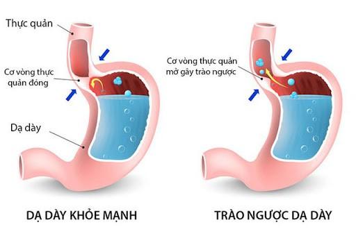 Biểu hiện của bệnh trào ngược dạ dày chính là cảm giác đau rát khó chịu xuất hiện mỗi khi thực quản bị trào ngược các chất gây nên chứng ợ chua, ợ nóng...