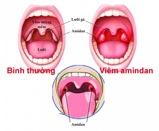 Người bị bệnh amidan cảm thấy đau, sưng tấy đỏ ở cổ họng