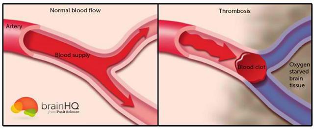 Cục máu đông có thể làm tắc nghẽn mạch máu