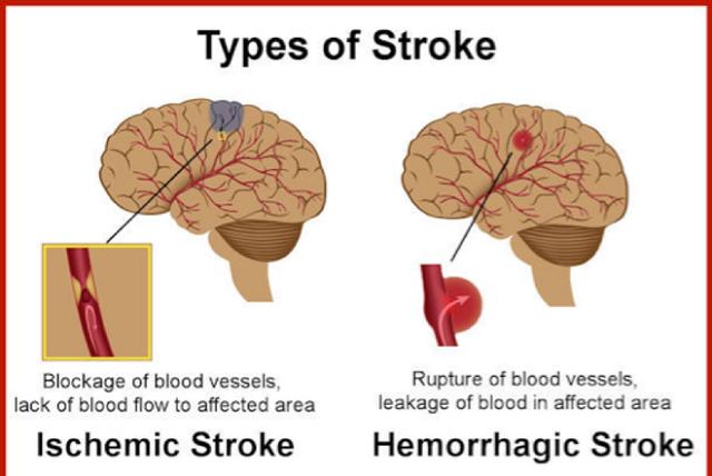 Tai biến mạch máu não do cục máu đông hình thành