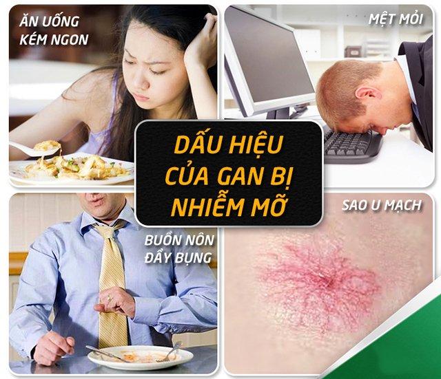 triệu chứng gan nhiễm mỡ