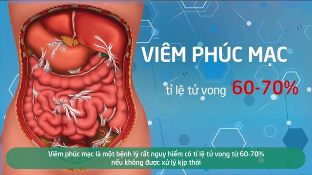 Biến chứng viêm phúc mạc từ đau ruột thừa