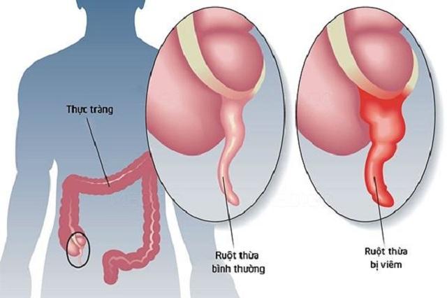 Các cơn đau ruột thừa kéo dài nhiều lần dễ gây ra nguy hiểm