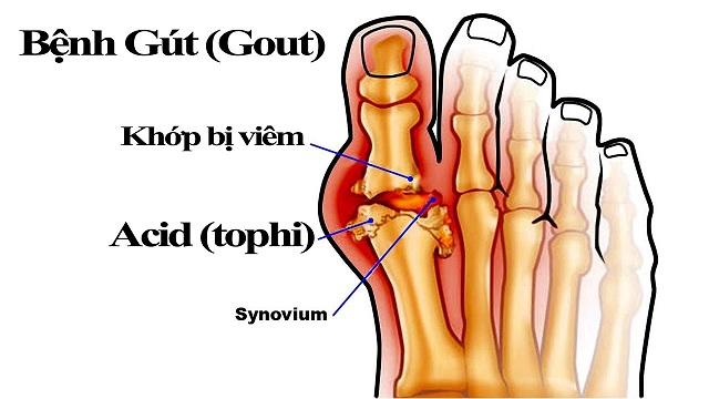 Trong gout, viêm xảy ra khi các tinh thể urat lắng đọng, còn gọi là Tophi