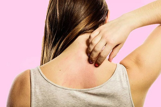 Nắng nóng có thể gây ra mẩn ngứa, phát ban