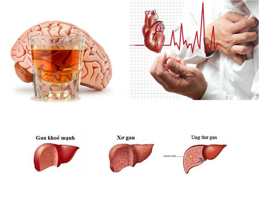 Bí kíp giải rượu nhanh chống say ngày Tết 1
