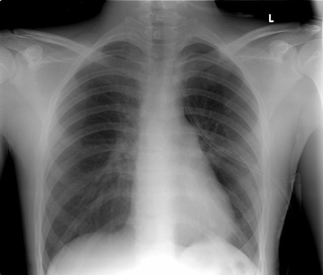 nguyên nhân tràn dịch màn phổi